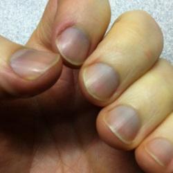 Blue Nails Lack Of Oxygen