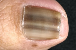 dark stripes running down your nail