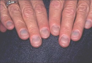Grey Nails Caused by Antimalarials or Minocycline