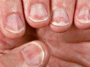 oil slick psoriatic nails