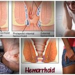 Hemorrhoids' cure