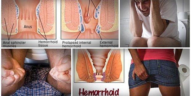 Hemorrhoids' cure