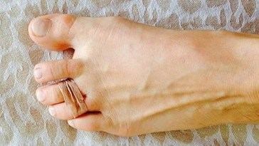 Woman Puts Rubber Band Around Her Two Toes,