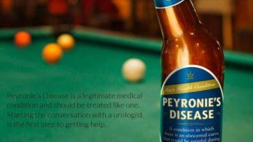 Beer Bottle Curved Like Peyronie Diseased Penis