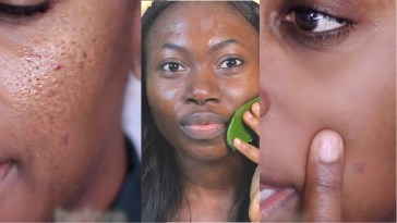 How To Get Rid Of Large Pores In Just 3 Days