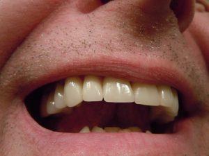 Teeth crown cost