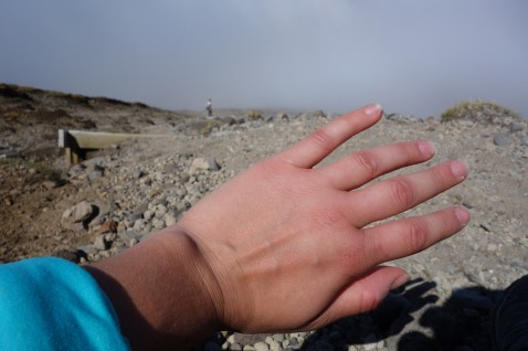 My swollen hands on the way down from Mount Taranaki - I have since found out that I probably suffer from a lack of electrolytes