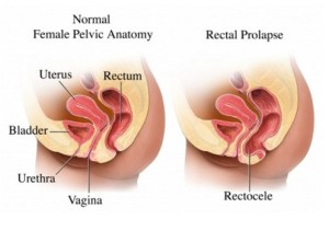 Rectocele  Grades, Symptoms, Causes, Treatment, Surgery, Complications