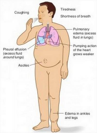 Hypervolemia  Causes Symptoms Pathophysiology Shock  Treatment