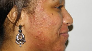 black woman with acne