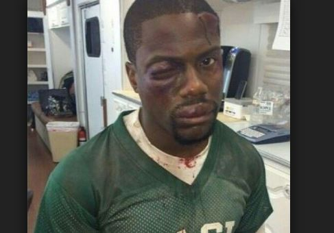 Kelvin hart robbed and beaten to a pulp