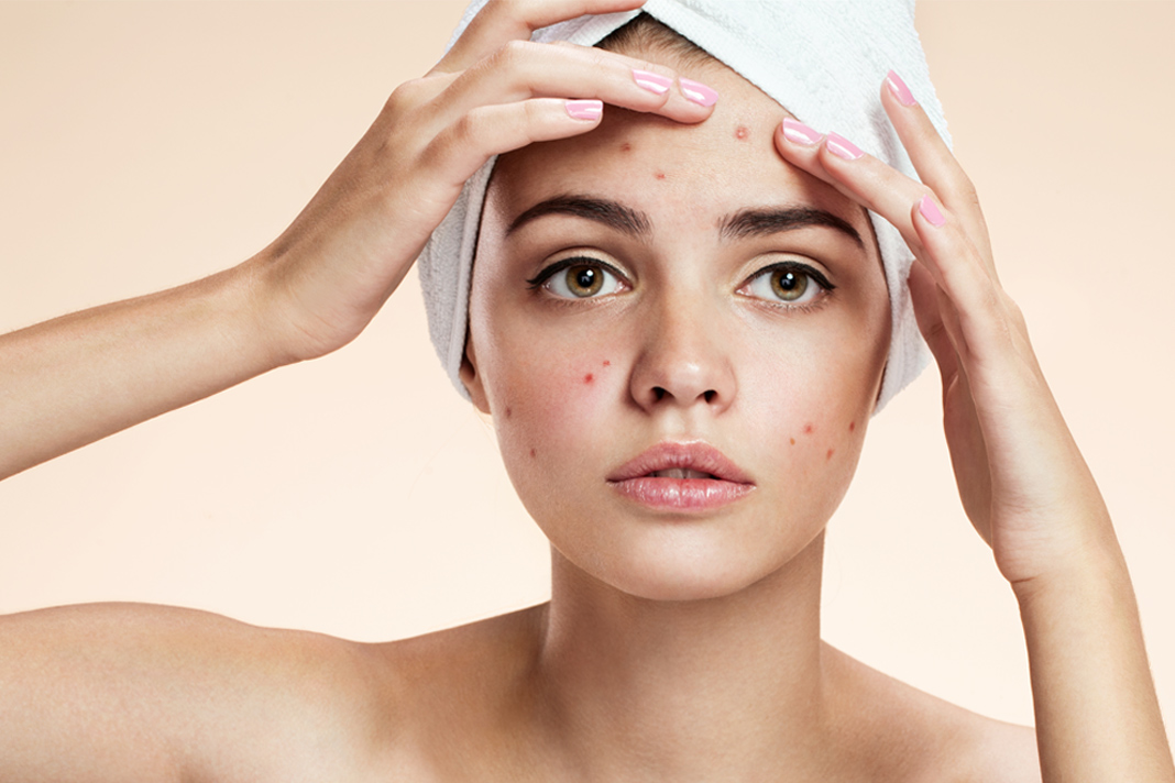 How to get rid of papules acne