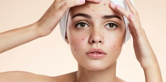 How to Cure Acne Papules