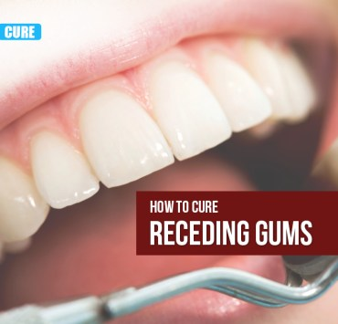 home remedies of receding gums