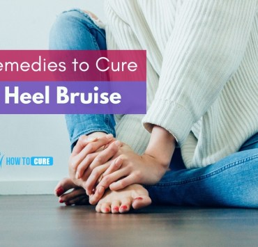 remedies to cure and manage heel bruise
