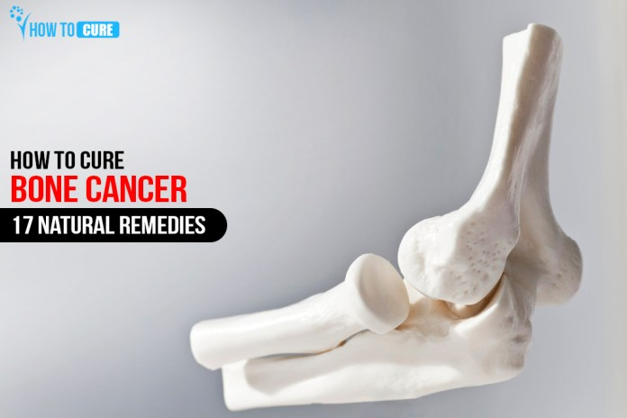 How to cure Bone cancer 17 Natural Remedies
