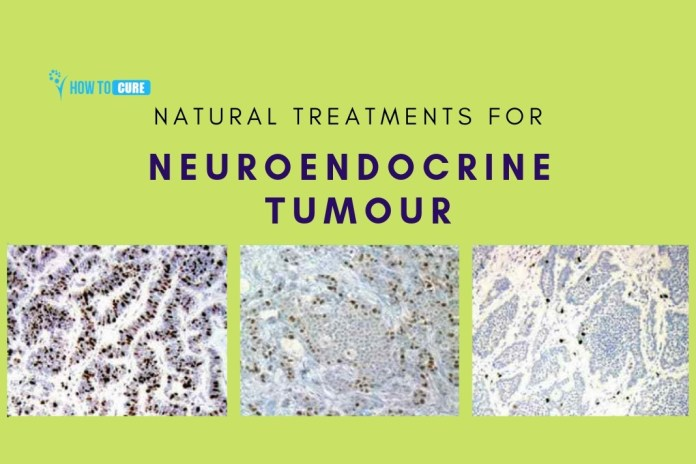how to cure neuroendocrine tumour