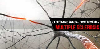 Home Remedies for Multiple Sclerosis