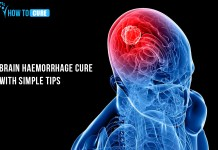 39_brain-hemorrhage-cure-with-simple-tips