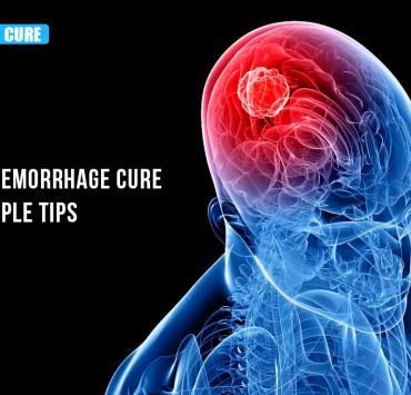 Brain hemorrhagic stroke treatment