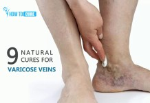 9 Natural cures for Varicose Veins