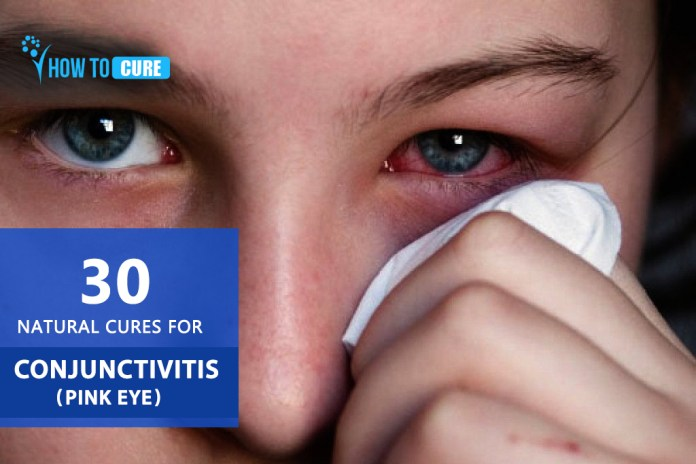 30 Natural cures for Conjunctivitis