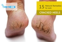 15 Natural Remedies to cure Cracked Heels