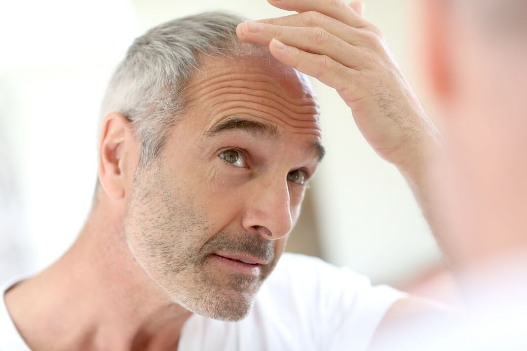 How to Stop Grey Hair