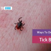 how to treat tick bites