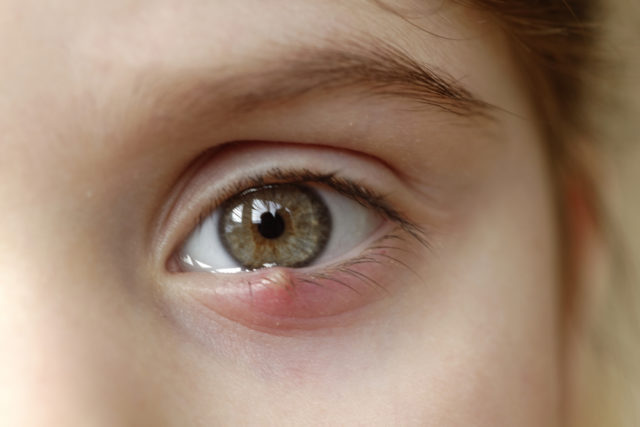 how to get rid of a chalazion
