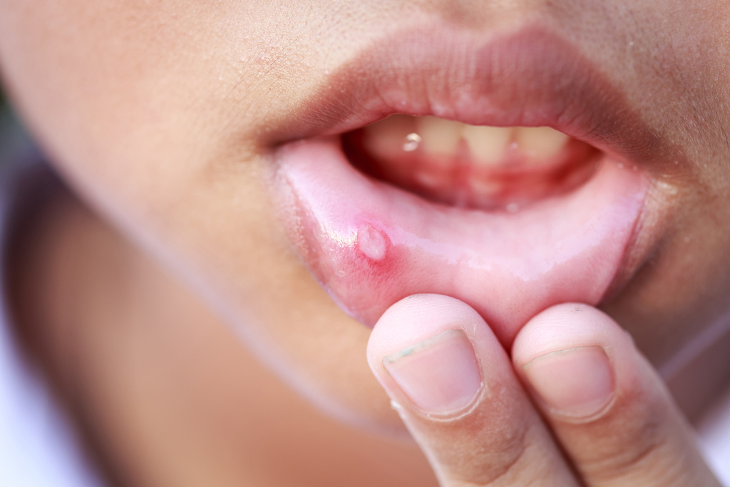 12 Effective Mouth Ulcer Home Remedies