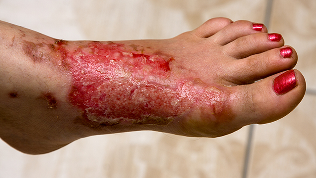 20 Natural Remedies to Sooth and Heal Burns Faster