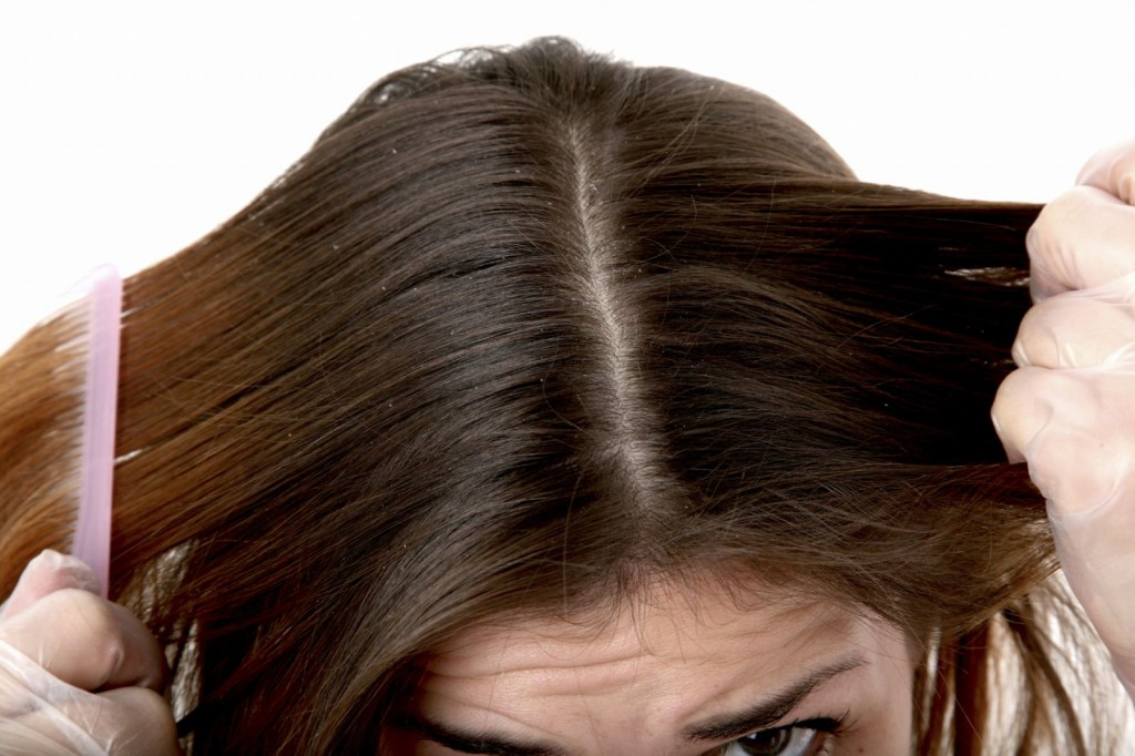 Natural treatment for dandruff on scalp