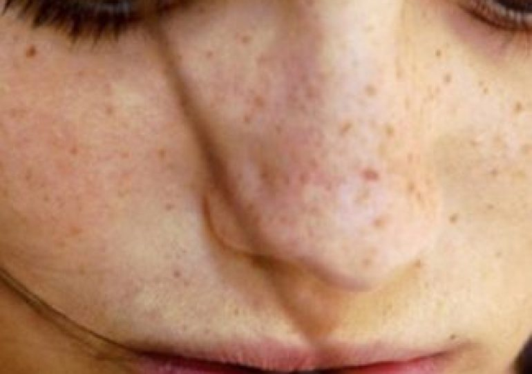 15 Natural Remedies to Cure Hyperpigmentation of Skin