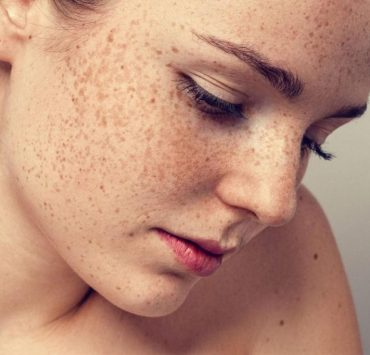 Home Remedies For Hyperpigmentation of Skin