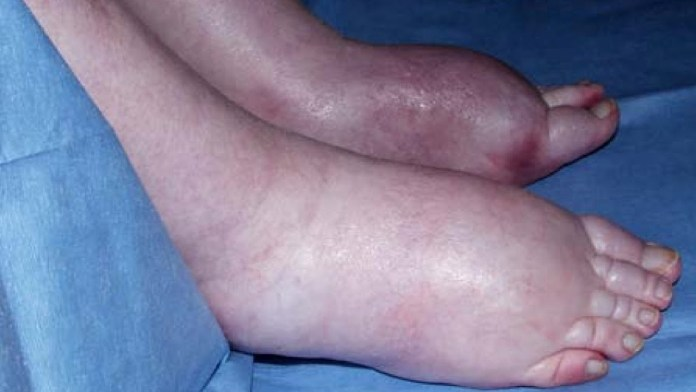 Natural Treatment of Edema
