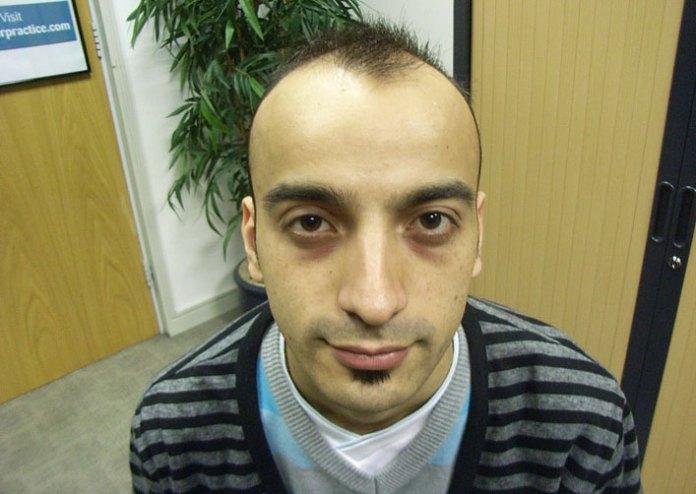 Prevention of Baldness