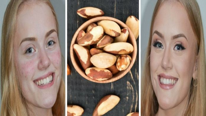 brazil nuts for the cure of acne