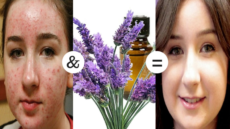 lavender oil for the treatment of acne