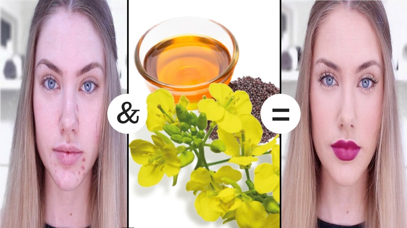 mustard health for skin acne and blemishes