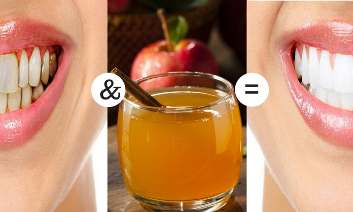 Apple Cider Vinegar for tooth infection