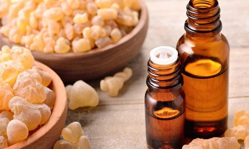 frankincense oil for hives treatment