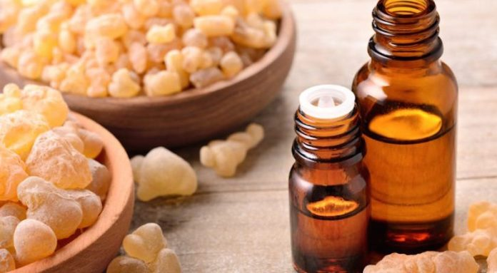 frankincense oil to reduce anxiety