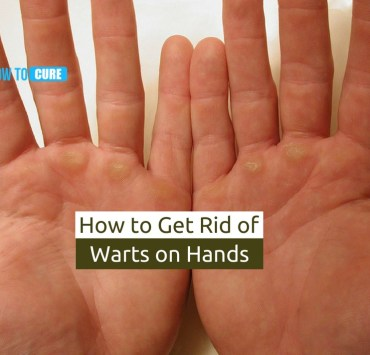 how to get rid of warts on hands