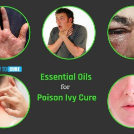 essential oils for poison ivy cure