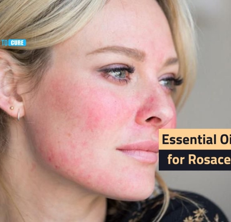 essential oils for rosacea