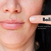 Get Rid Of Boils