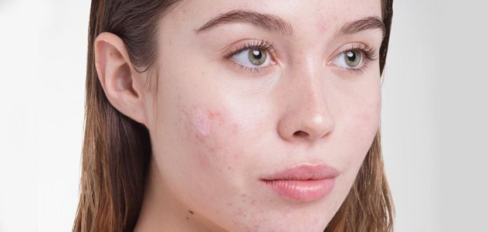blackstrap molasses for blemishes and acne
