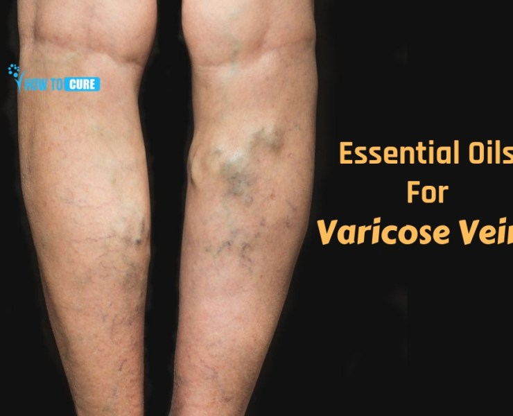 essential oils for varicose veins
