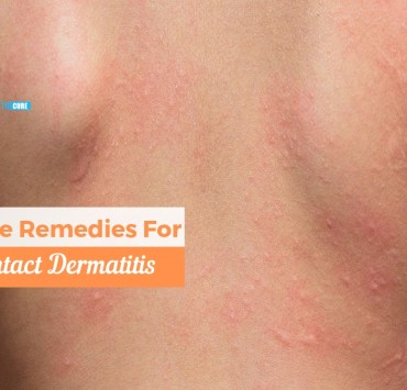 home remedies for contact dermatitis